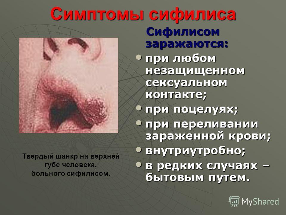Симптомы сифилиса Сифилисом заражаются: Сифилисом заражаются: при любом незащищенном сексуальном контакте; при любом незащищенном сексуальном контакте; при поцелуях; при поцелуях; при переливании зараженной крови; при переливании зараженной крови; вн