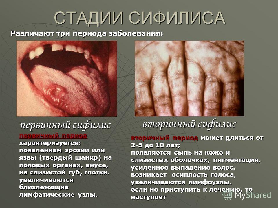 СТАДИИ СИФИЛИСА первичный сифилис вторичный сифилис первичный период характеризуется: появлением эрозии или язвы (твердый шанкр) на половых органах, анусе, на слизистой губ, глотки. увеличиваются близлежащие лимфатические узлы. вторичный период может