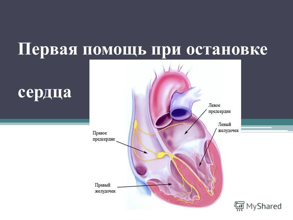 Первая помощь при остановке сердца