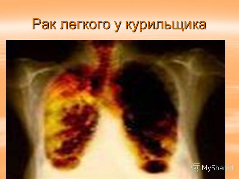Рак легкого у курильщика