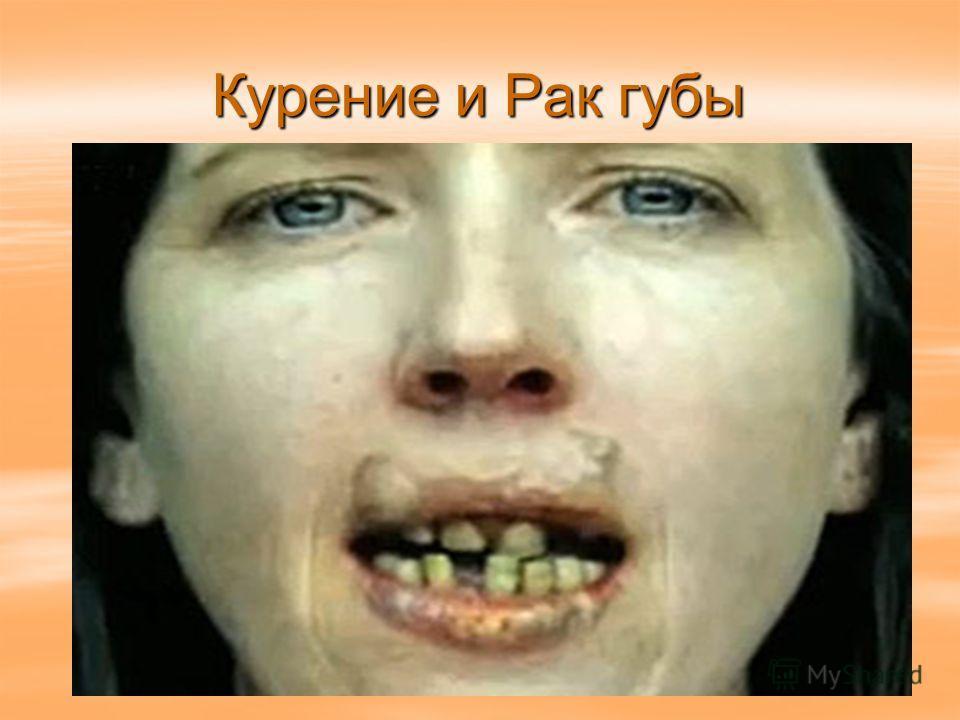 Курение и Рак губы