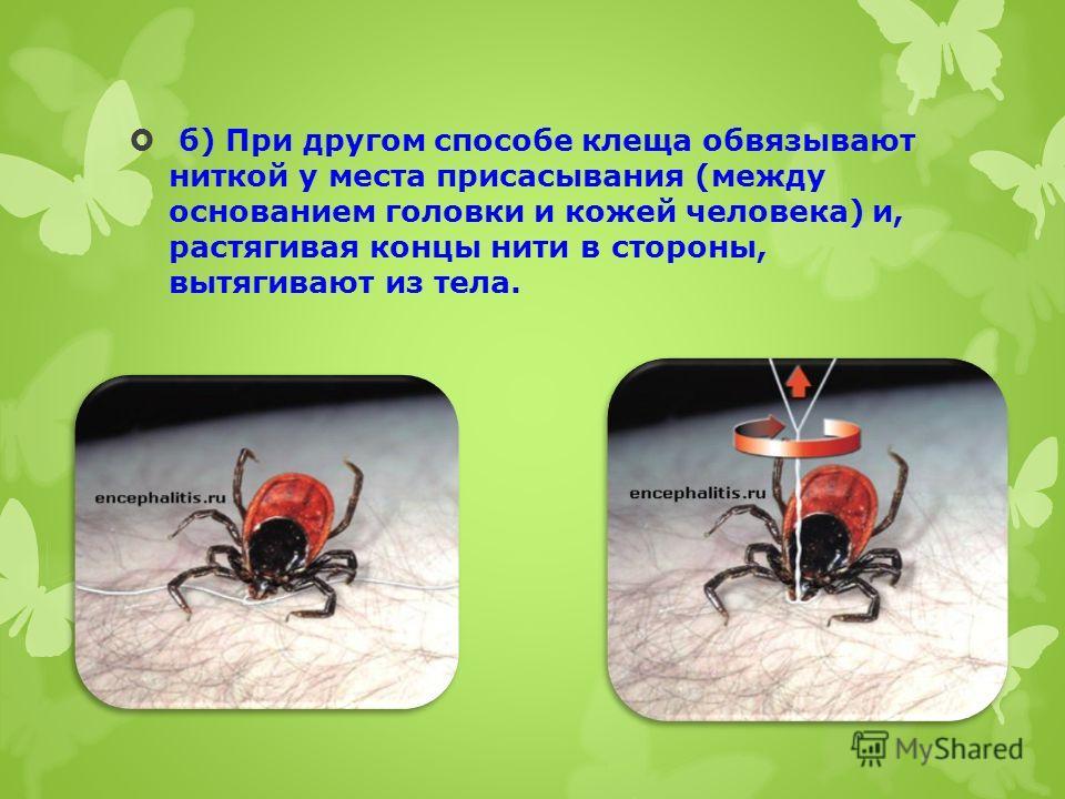 б) При другом способе клеща обвязывают ниткой у места присасывания (между основанием головки и кожей человека) и, растягивая концы нити в стороны, вытягивают из тела.