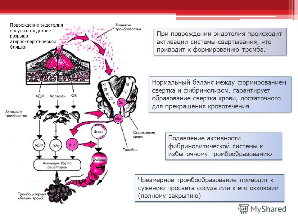 Повреждение эндотелия сосуда вследствие разрыва атеросклеротической бляшки При повреждении эндотелия происходит активации системы свертывания, что приводит к формированию тромба. Нормальный баланс между формированием свертка и фибринолизом, гарантиру
