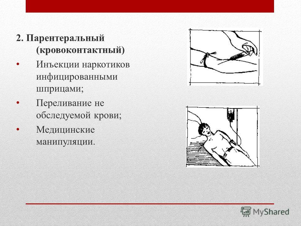 2. Парентеральный (кровоконтактный) Инъекции наркотиков инфицированными шприцами; Переливание не обследуемой крови; Медицинские манипуляции.