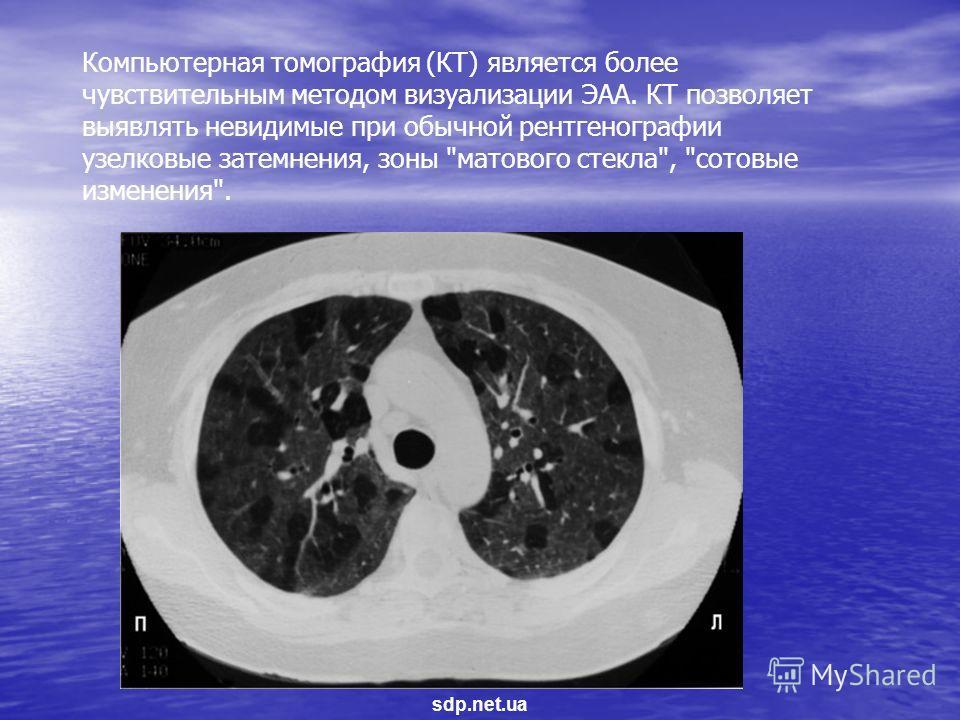 Компьютерная томография (КТ) является более чувствительным методом визуализации ЭАА. КТ позволяет выявлять невидимые при обычной рентгенографии узелковые затемнения, зоны матового стекла, сотовые изменения. sdp.net.ua