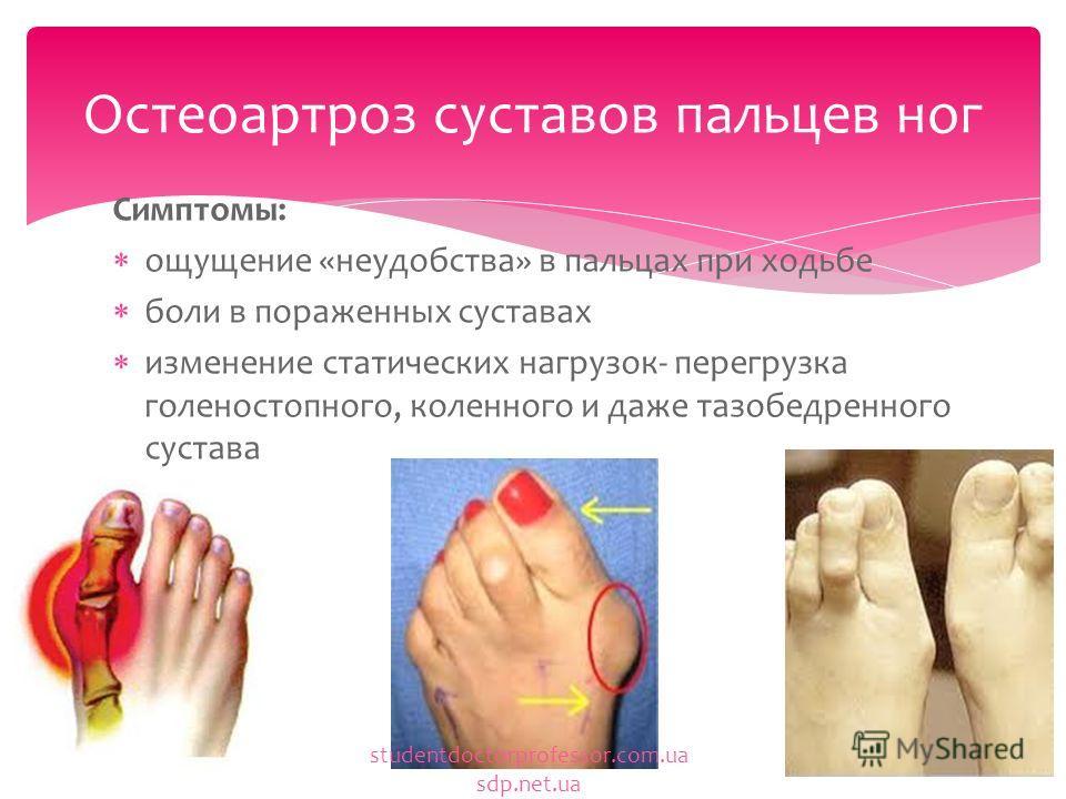 Боль в пальцевых суставах ноги 84
