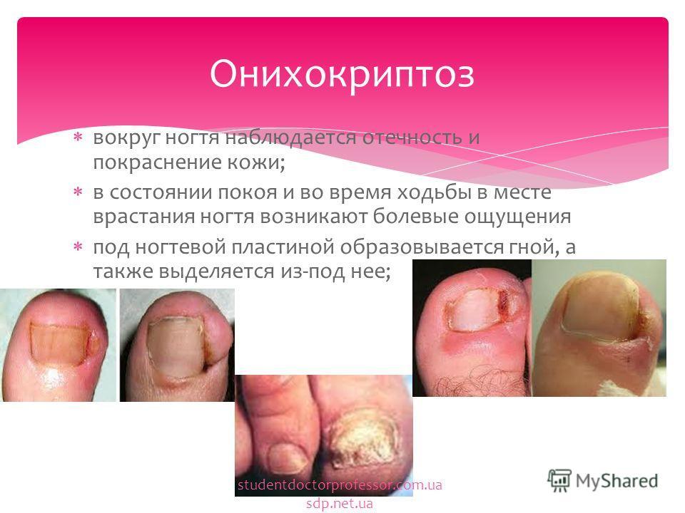 вокруг ногтя наблюдается отечность и покраснение кожи; в состоянии покоя и во время ходьбы в месте врастания ногтя возникают болевые ощущения под ногтевой пластиной образовывается гной, а также выделяется из-под нее; Онихокриптоз studentdoctorprofess