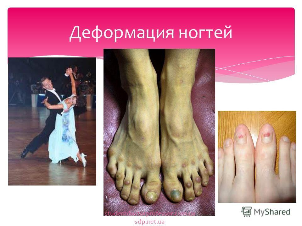 Деформация ногтей studentdoctorprofessor.com.ua sdp.net.ua