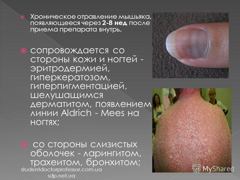 Хроническое отравление мышьяка, появляющееся через 2-8 нед после приема препарата внутрь, сопровождается со стороны кожи и ногтей - эритродермией, гиперкератозом, гиперпигментацией, шелушащимся дерматитом, появлением линии Aldrich - Mees на ногтях; с