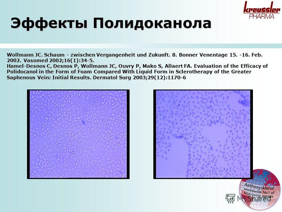 Wollmann JC. Schaum - zwischen Vergangenheit und Zukunft. 8. Bonner Venentage 15. -16. Feb. 2002. Vasomed 2002;16(1):34-5. Hamel-Desnos C, Desnos P, Wollmann JC, Ouvry P, Mako S, Allaert FA. Evaluation of the Efficacy of Polidocanol in the Form of Fo