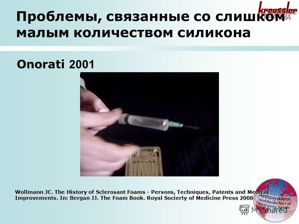 Onorati 2001 Wollmann JC. The History of Sclerosant Foams - Persons, Techniques, Patents and Medical Improvements. In: Bergan JJ. The Foam Book. Royal Socierty of Medicine Press 2008 Проблемы, связанные со слишком малым количеством силикона