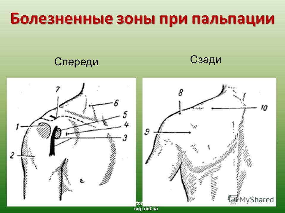 Болезненные зоны при пальпации Спереди Сзади studentdoctorprofessor.com.ua sdp.net.ua