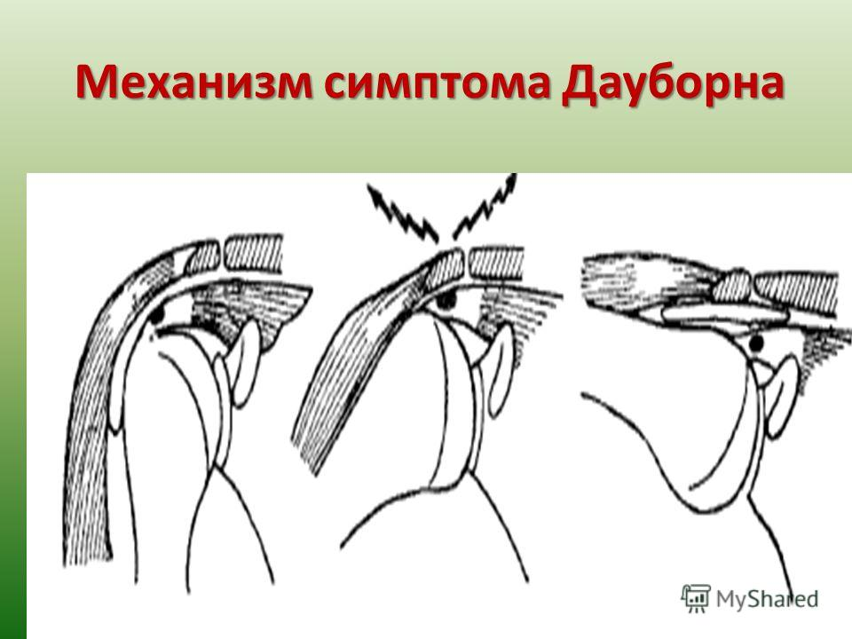 Механизм симптома Дауборна studentdoctorprofessor.com.ua sdp.net.ua