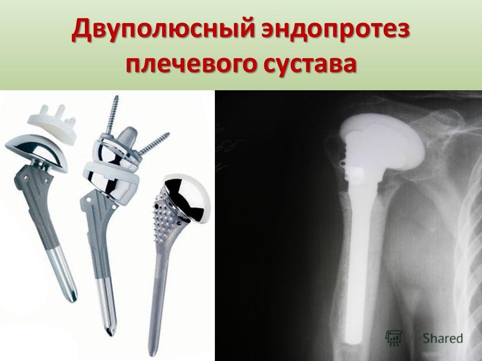 Двуполюсный эндопротез плечевого сустава