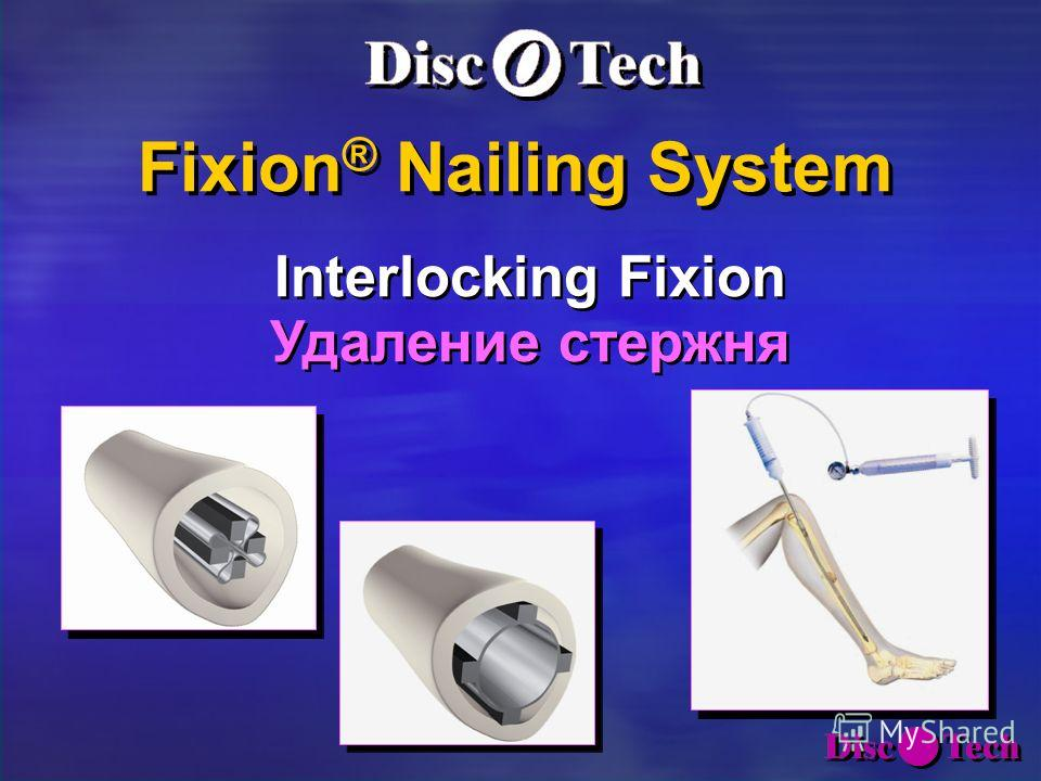 Fixion ® Nailing System Fixion ® Nailing System Interlocking Fixion Удаление стержня Interlocking Fixion Удаление стержня
