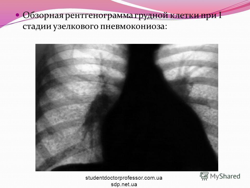 Обзорная рентгенограмма грудной клетки при I стадии узелкового пневмокониоза: studentdoctorprofessor.com.ua sdp.net.ua