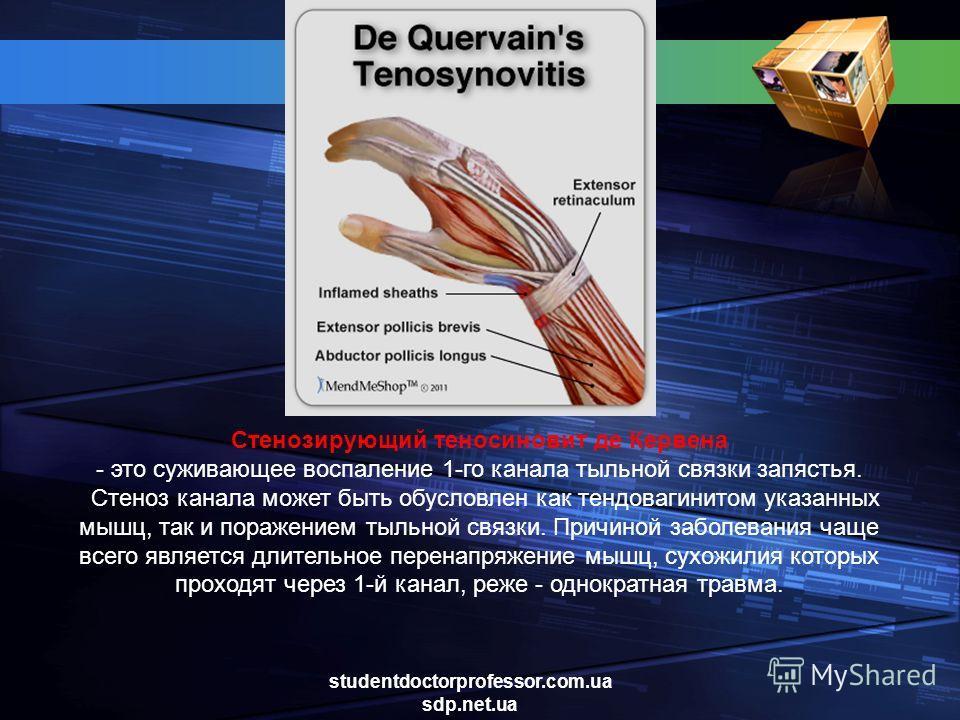 Cтенозирующий теносиновит де Кервена - это суживающее воспаление 1-го канала тыльной связки запястья. Стеноз канала может быть обусловлен как тендовагинитом указанных мышц, так и поражением тыльной связки. Причиной заболевания чаще всего является дли