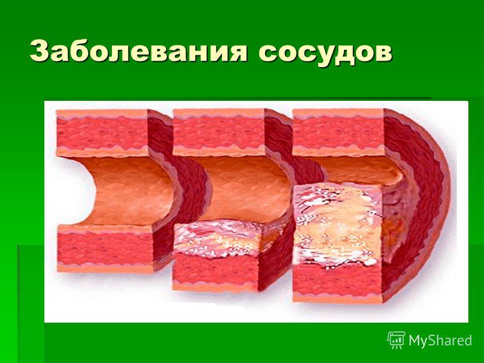 Заболевания сосудов