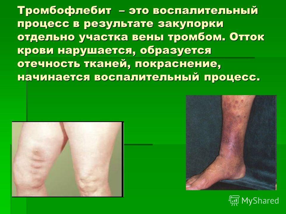 Тромбофлебит – это воспалительный процесс в результате закупорки отдельно участка вены тромбом. Отток крови нарушается, образуется отечность тканей, покраснение, начинается воспалительный процесс.