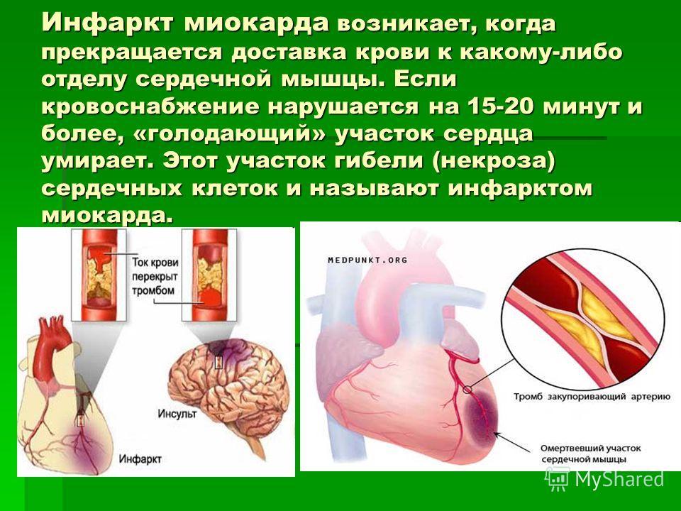 Инфаркт миокарда возникает, когда прекращается доставка крови к какому-либо отделу сердечной мышцы. Если кровоснабжение нарушается на 15-20 минут и более, «голодающий» участок сердца умирает. Этот участок гибели (некроза) сердечных клеток и называют