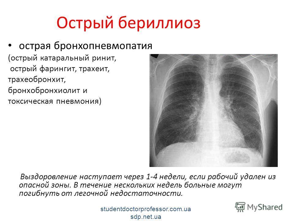 Острый бериллиоз острая бронхопневмопатия (острый катаральный ринит, острый фарингит, трахеит, трахеобронхит, бронхобронхиолит и токсическая пневмония) Выздоровление наступает через 1-4 недели, если рабочий удален из опасной зоны. В течение нескольки