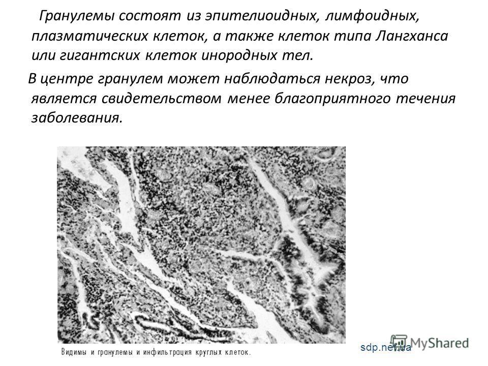Гранулемы состоят из эпителиоидных, лимфоидных, плазматических клеток, а также клеток типа Лангханса или гигантских клеток инородных тел. В центре гранулем может наблюдаться некроз, что является свидетельством менее благоприятного течения заболевания