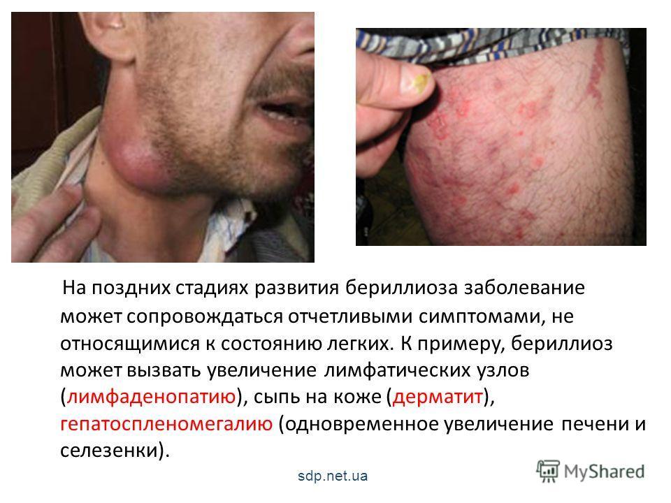 На поздних стадиях развития бериллиоза заболевание может сопровождаться отчетливыми симптомами, не относящимися к состоянию легких. К примеру, бериллиоз может вызвать увеличение лимфатических узлов (лимфаденопатию), сыпь на коже (дерматит), гепатоспл