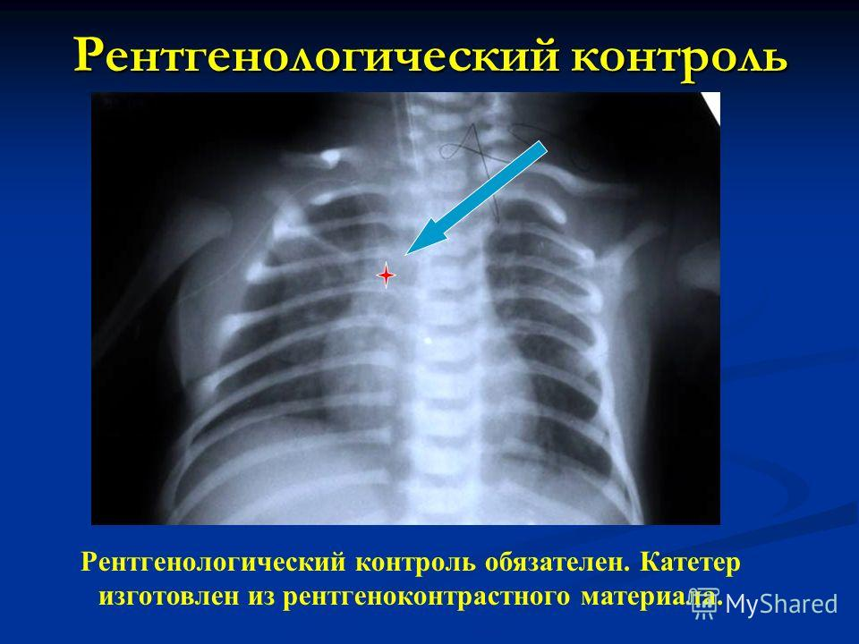 Рентгенологический контроль Рентгенологический контроль обязателен. Катетер изготовлен из рентгеноконтрастного материала.