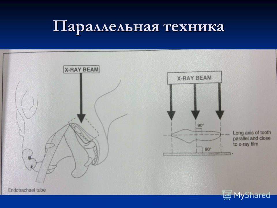 Параллельная техника