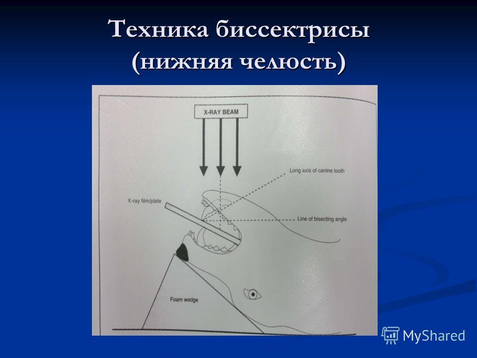 Техника биссектрисы (нижняя челюсть)