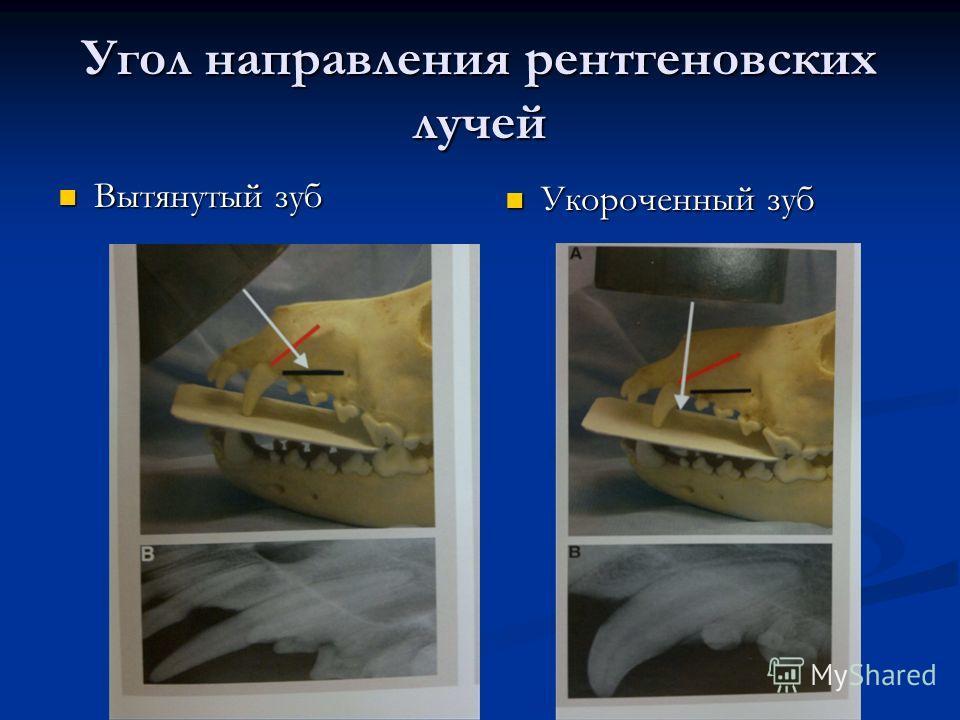 Вытянутый зуб Вытянутый зуб Укороченный зуб