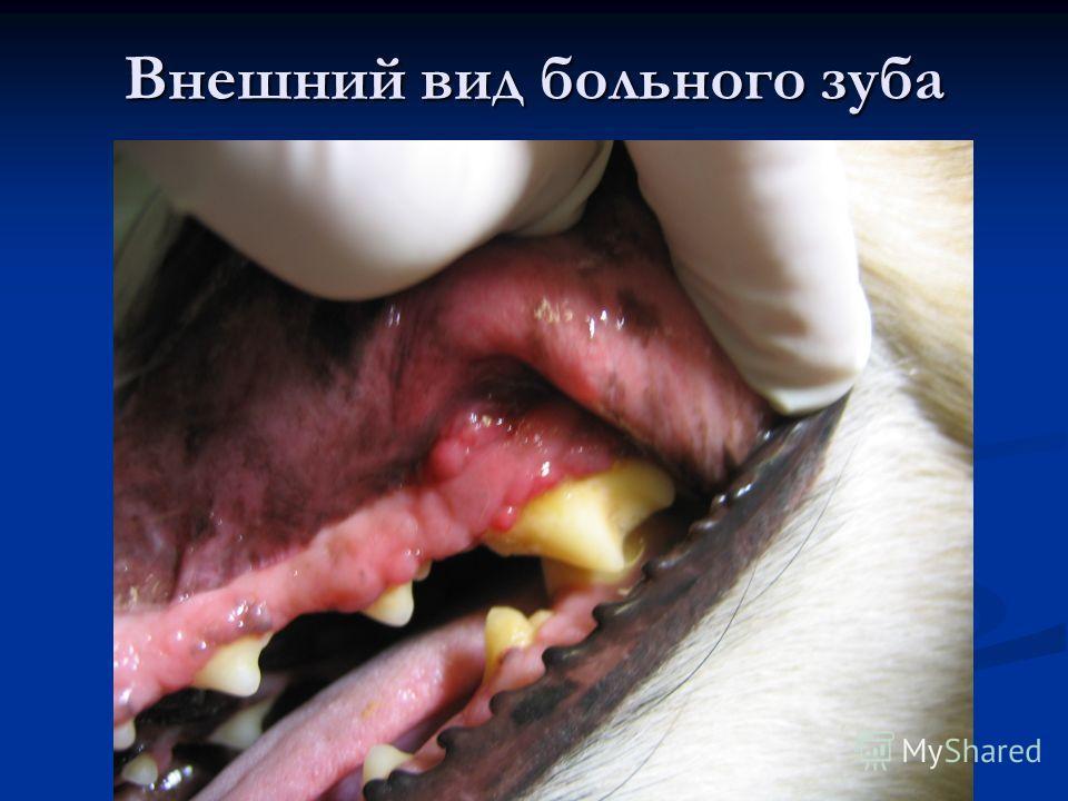 Внешний вид больного зуба