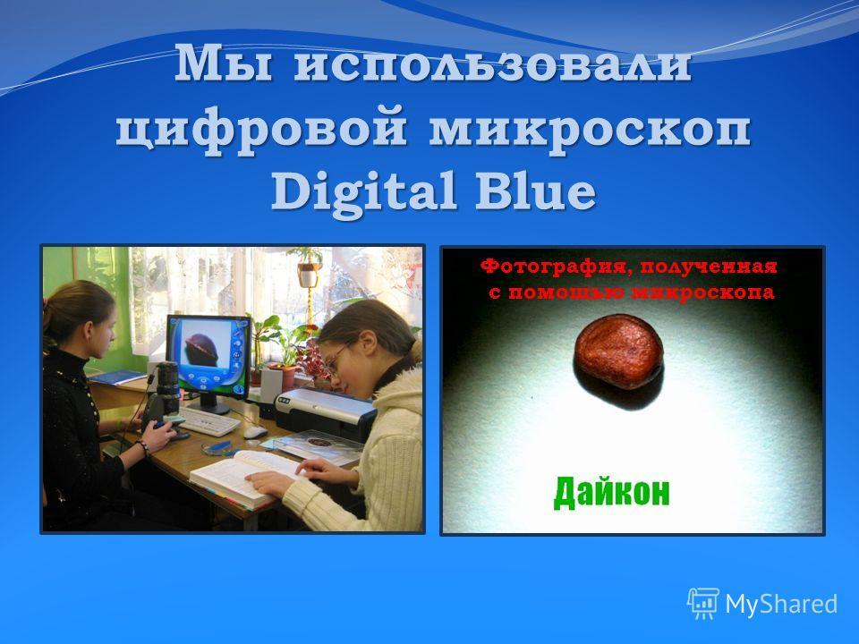 Мы использовали цифровой микроскоп Digital Blue Фотография, полученная с помощью микроскопа