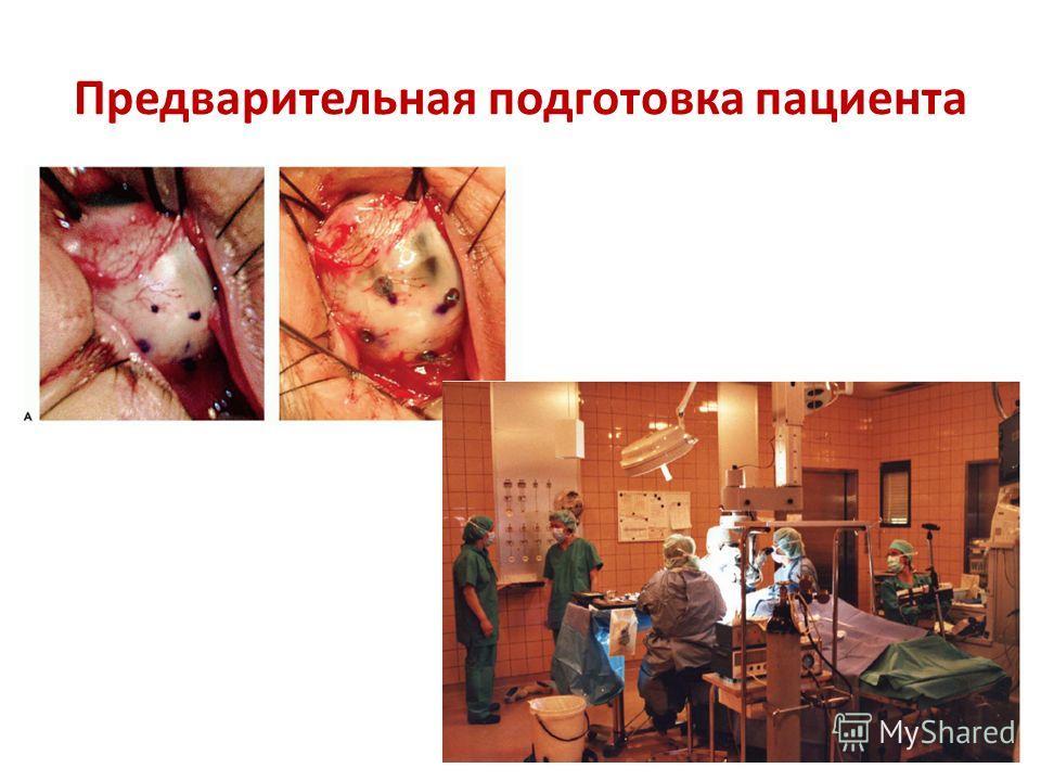 Предварительная подготовка пациента