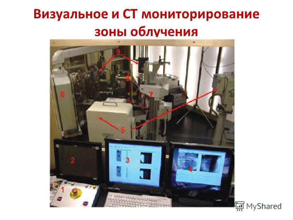 Визуальное и CT мониторирование зоны облучения