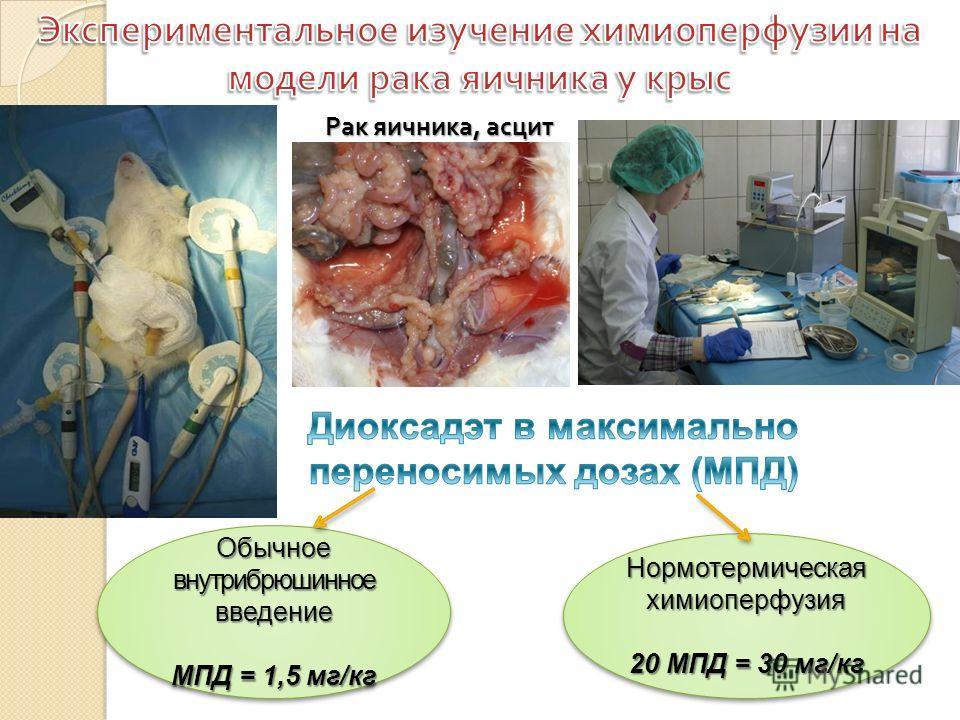Рак яичника, асцит Обычное внутрибрюшинное введение МПД = 1,5 мг/кг Обычное внутрибрюшинное введение МПД = 1,5 мг/кг Нормотермическая химиоперфузия 20 МПД = 30 мг/кг Нормотермическая химиоперфузия 20 МПД = 30 мг/кг