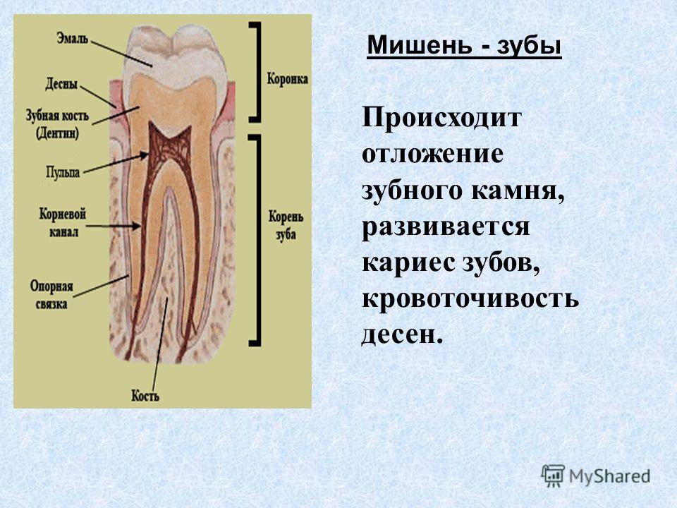 Мишень - зубы Происходит отложение зубного камня, развивается кариес зубов, кровоточивость десен.