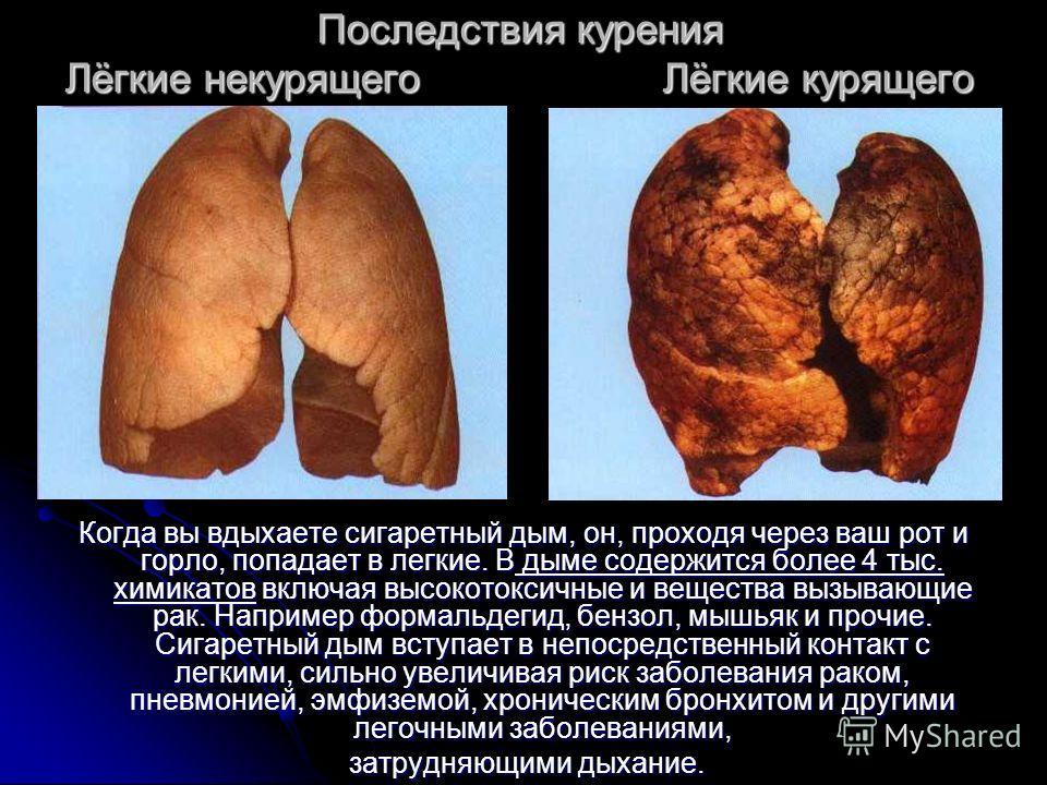 Последствия курения Лёгкие некурящего Лёгкие курящего Когда вы вдыхаете сигаретный дым, он, проходя через ваш рот и горло, попадает в легкие. В дыме содержится более 4 тыс. химикатов включая высокотоксичные и вещества вызывающие рак. Например формаль