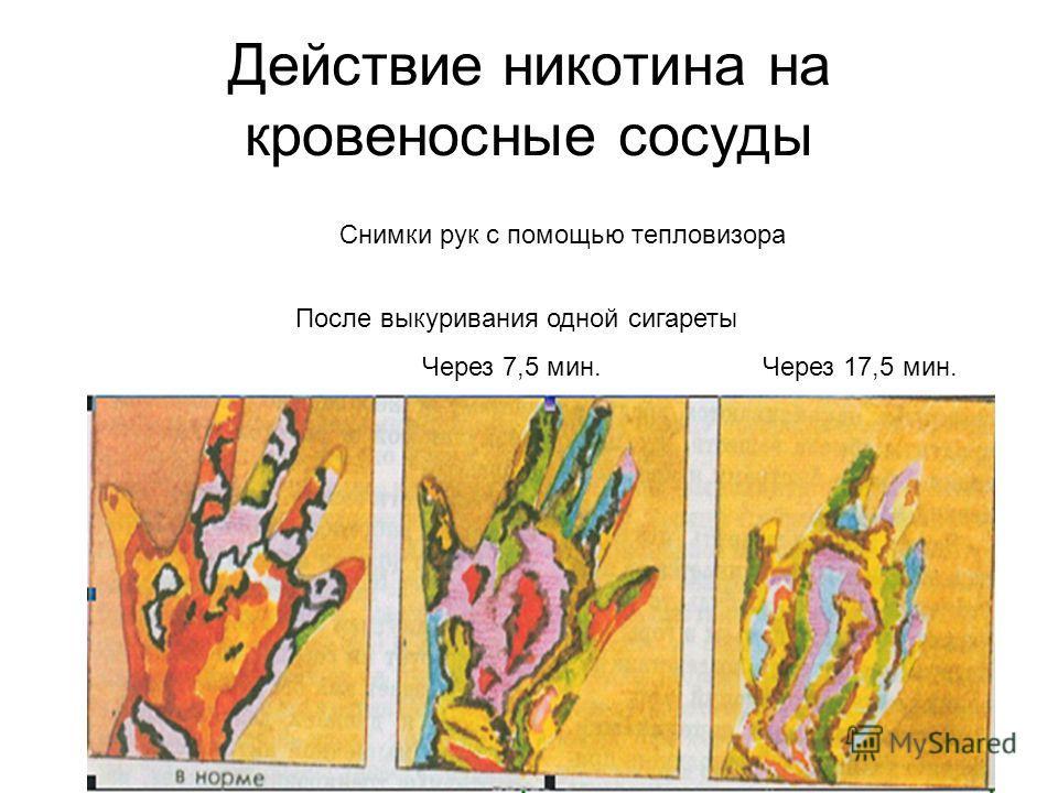 Действие никотина на кровеносные сосуды После выкуривания одной сигареты Через 7,5 мин. Через 17,5 мин. Снимки рук с помощью тепловизора