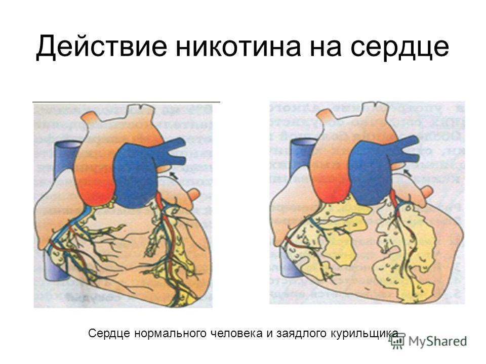 Действие никотина на сердце Сердце нормального человека и заядлого курильщика
