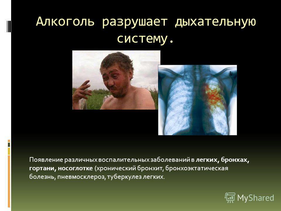 Алкоголь разрушает дыхательную систему. Появление различных воспалительных заболеваний в легких, бронхах, гортани, носоглотке (хронический бронхит, бронхоэктатическая болезнь, пневмосклероз, туберкулез легких.