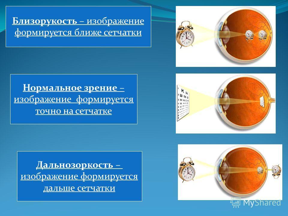 Близорукость – изображение формируется ближе сетчатки Нормальное зрение – изображение формируется точно на сетчатке Дальнозоркость – изображение формируется дальше сетчатки
