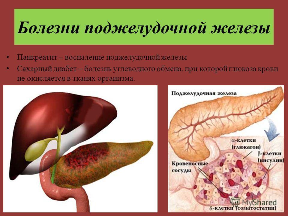 Заболевание поджелудочной или сахарный диабет