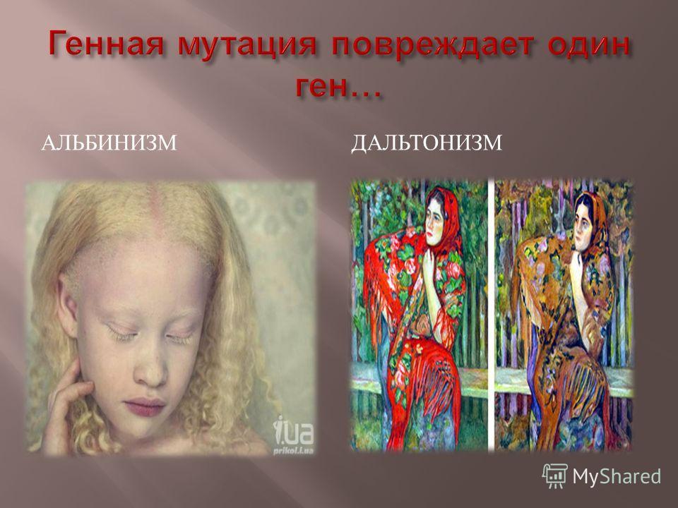 АЛЬБИНИЗМДАЛЬТОНИЗМ
