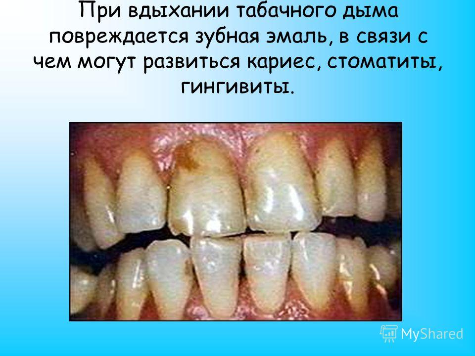 При вдыхании табачного дыма повреждается зубная эмаль, в связи с чем могут развиться кариес, стоматиты, гингивиты.