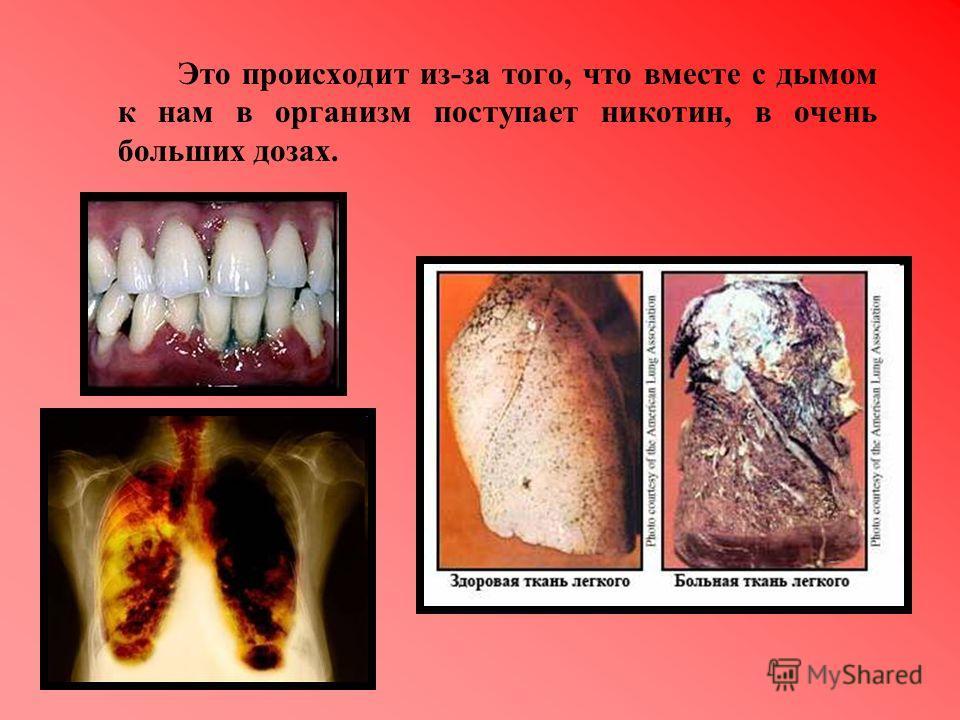 Это происходит из-за того, что вместе с дымом к нам в организм поступает никотин, в очень больших дозах.