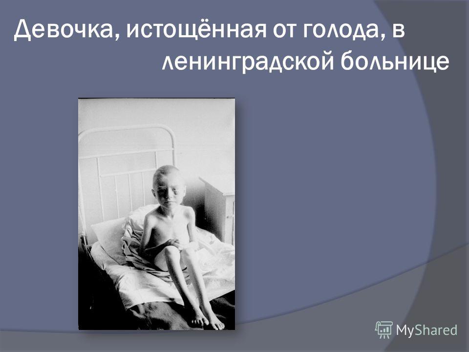 Девочка, истощённая от голода, в ленинградской больнице