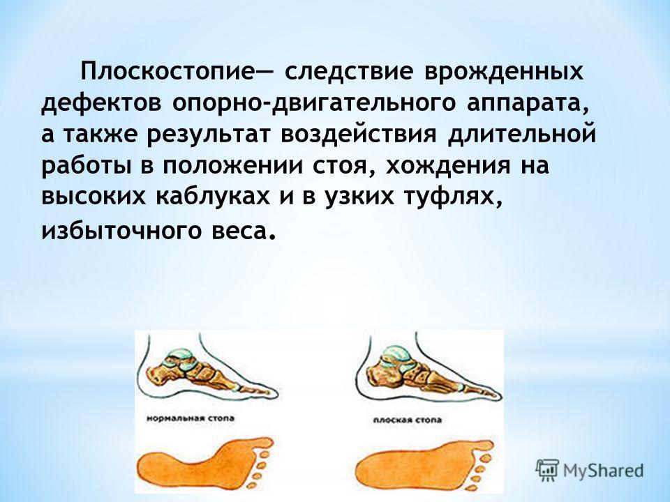Плоскостопие следствие врожденных дефектов опорно-двигательного аппарата, а также результат воздействия длительной работы в положении стоя, хождения на высоких каблуках и в узких туфлях, избыточного веса.