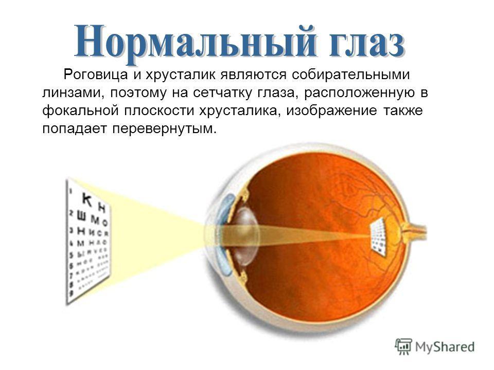 Роговица и хрусталик являются собирательными линзами, поэтому на сетчатку глаза, расположенную в фокальной плоскости хрусталика, изображение также попадает перевернутым.