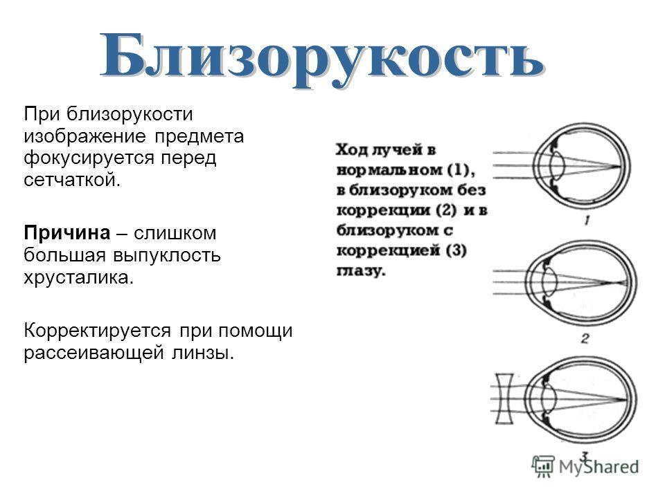 При близорукости изображение предмета фокусируется перед сетчаткой. Причина – слишком большая выпуклость хрусталика. Корректируется при помощи рассеивающей линзы.